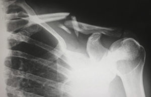 An x-ray of a broken shoulder